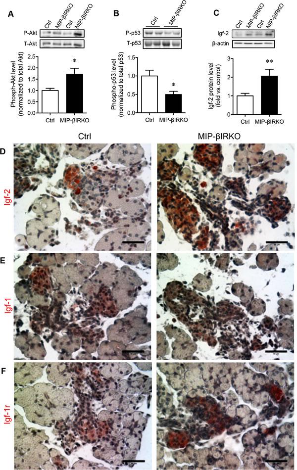 Fetal MIP-βIRKO islets have enhanced replication and pro-survival signaling pathway activity.