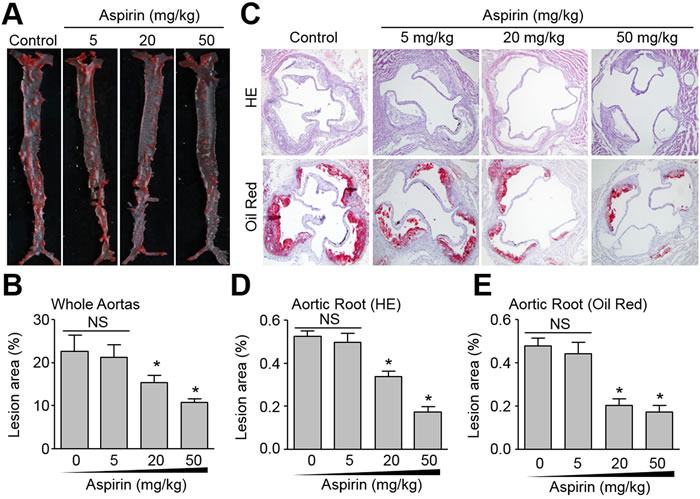 Effects of aspirin on aortic atherosclerotic plaque growth in