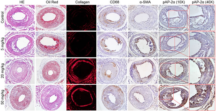 Effects of aspirin on carotid atherosclerotic plaque stability in