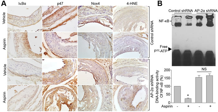 Knockdown of AP-2α abolishes the effects of aspirin on IkBα gene expression, NAD(P)H oxidase protein expressions, and oxidative stress in