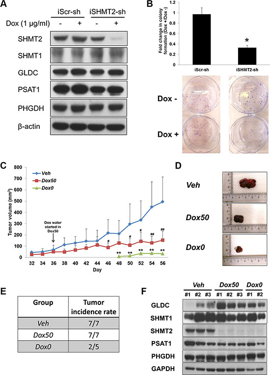 SHMT2 inhibition is able to reduce tumor growth as well as tumor incidence.