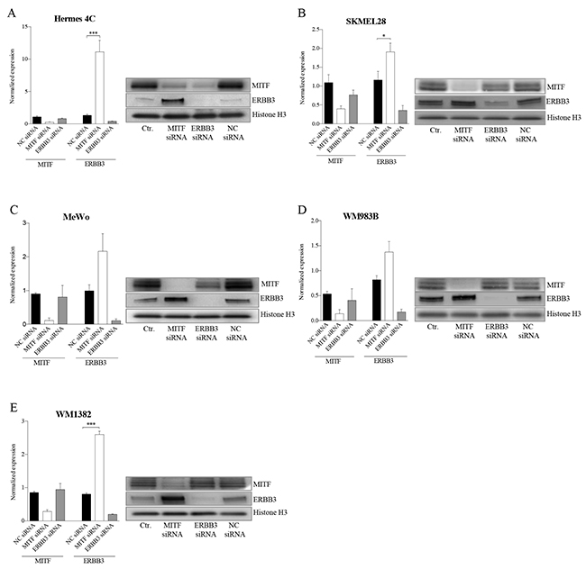 MITF suppresses ERBB3 expression at the transcriptional level in various cell lines after siRNA transfections.