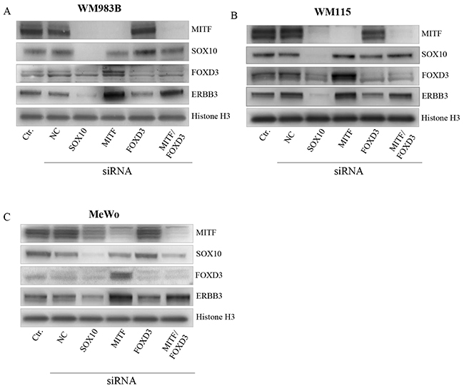 MITF suppress ERBB3 expression, both through and without FOXD3.