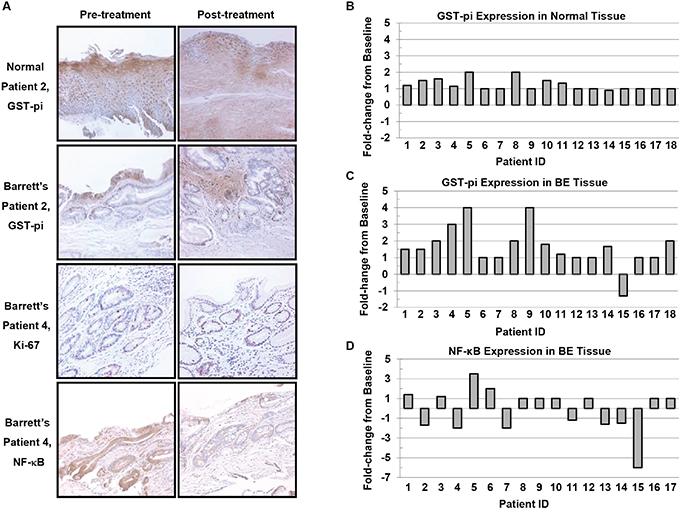 Immunohistochemical staining of normal esophageal epithelium and Barrett's epithelium (200X).
