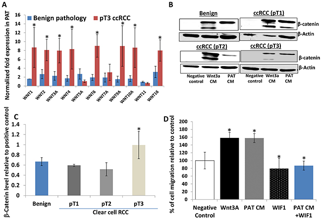Perineoplasm PATs from patients with pT3 ccRCC overexpress multiple WNTs compared to those with benign renal neoplasms and their CMs induce accumulation of cytoplasmic β-catenin in L cells.
