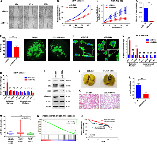 miR-644a inhibits metastasis, and its expression or gene signature is associated with metastasis of breast cancer patients.
