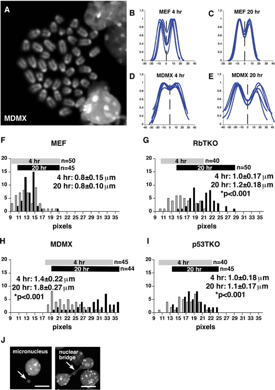 Analysis of Sister Chromatid Cohesion in Mouse Retinoblastoma.