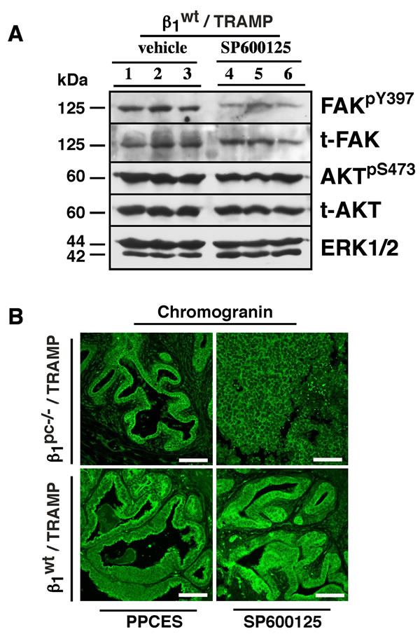 FAK/AKT signaling is not altered upon lower pelvis irradiation and JNK inhibition in β1