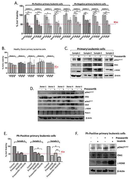 Effect of prexasertib on primary leukemic cells isolated from adult ALL patients and on peripheral mononuclear cells isolated from healthy donors.