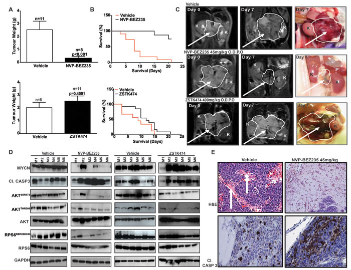 PI3K/mTOR pathway inhibition restricts the growth of MYCN-driven transgenic tumors.
