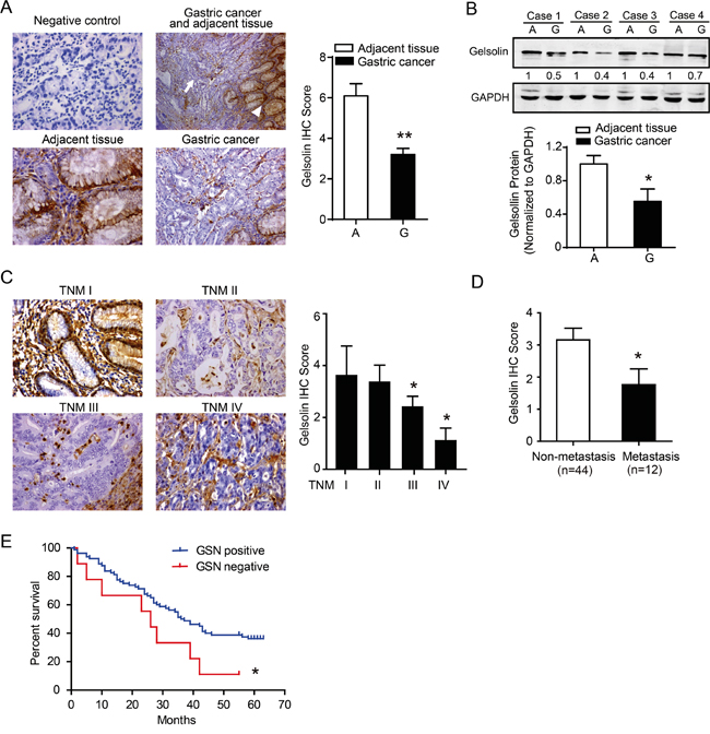 Downregulated gelsolin negatively correlated with tumor stage in gastric cancer.