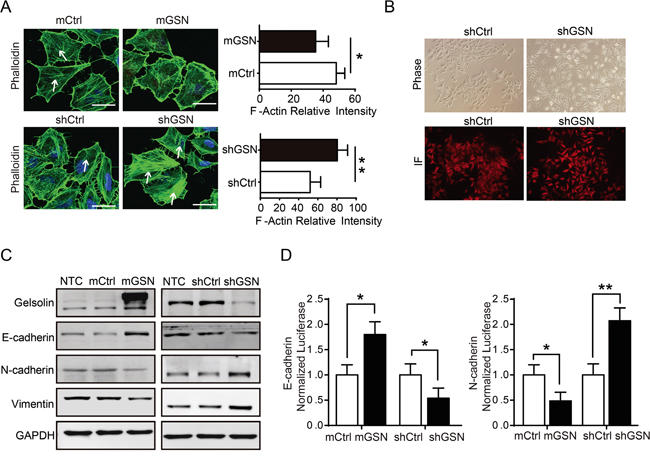 Gelsolin inhibited EMT and actin cytoskeletal rearrangement to suppress the migration of gastric cancer cell.