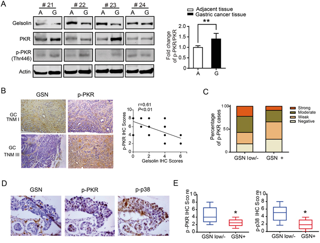 Downregulated gelsolin was associated with increased expression of PKR-p38 signaling proteins in human gastric cancer tissues.