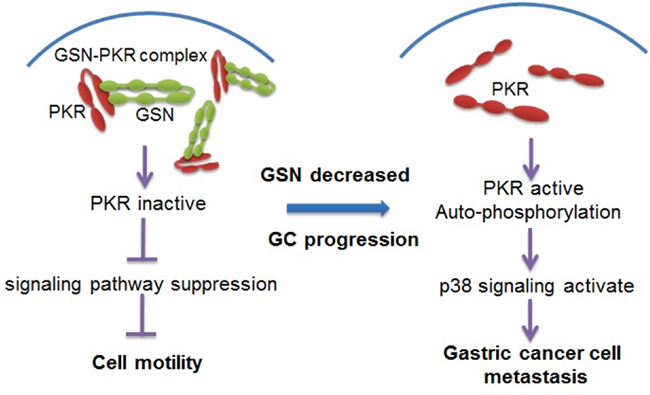 Proposed model for the mechanism of gelsolin signaling pathway in gastric cancer cell metastasis.