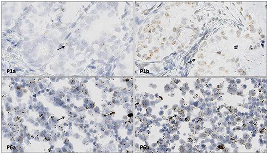 RNAscope ISH for ALK gene RNA detection.