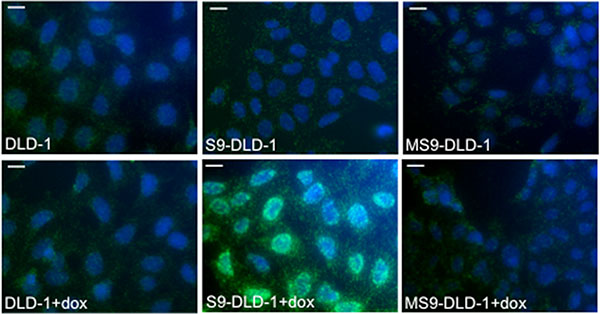 SOX9 binds with nuclear ß-catenin.