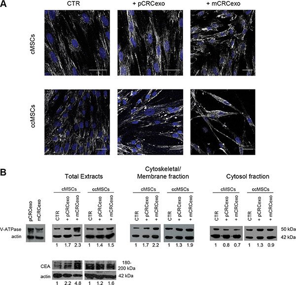 Colorectal cancer exosomes increase the expression of vacuolar H+-ATPase (V-ATPase) and CEA in colonic (c) MSCs and colon cancer (cc) MSCs.