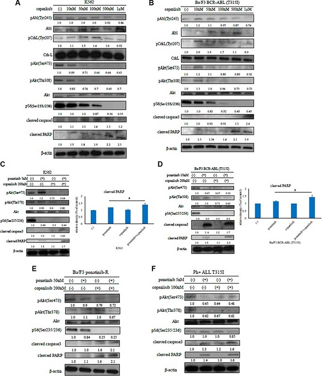 Effects of copanlisib and ABL TKIs on BCR-ABL-positive leukemia cells.