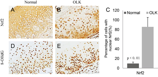 Increased expression of Nrf2 and 8OHdG in the nuclei of oral epithelial cells in OLK patients as compared with normal subjects.