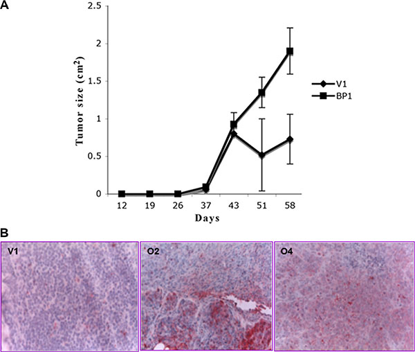 Tumor growth in mice is enhanced by increased BP1 expression.