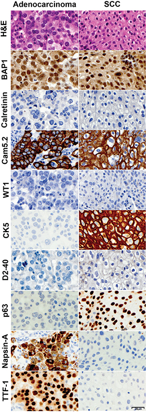 Immunohistochemical characterization of non-small cell lung cancers.