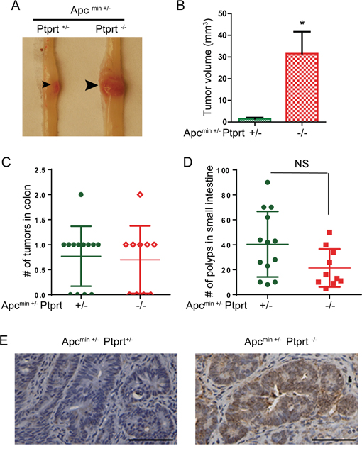 PTPRT knockout increases the size of colon tumors in Apc+/min mice.