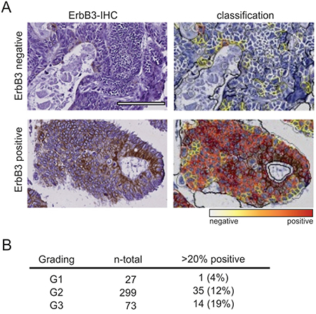 ErbB3 expression correlates with tumor grade in primary colon cancers.