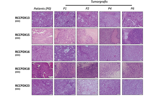 Histologic characterization of RCCPDX models.