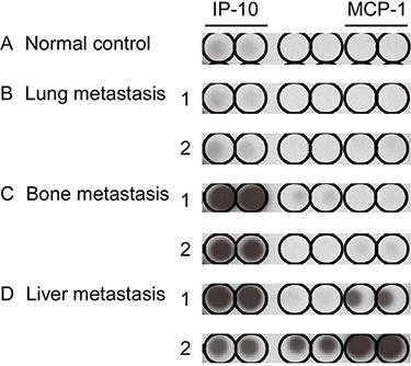 Cytokine array of pretreatment plasma in different sites of single organ metastasis.