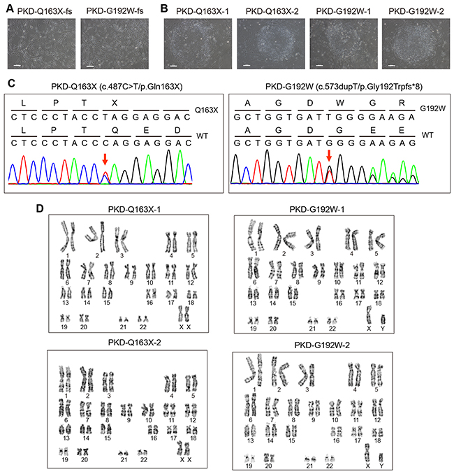 Generation of iPSC lines from fibroblasts (fs) of PKD patients with PRRT2 mutations.