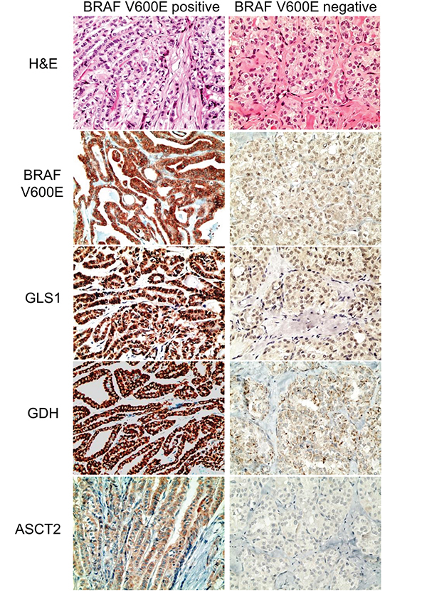 Expression of glutamine metabolism-related proteins according to the BRAF V600E mutation status in papillary thyroid cancer.