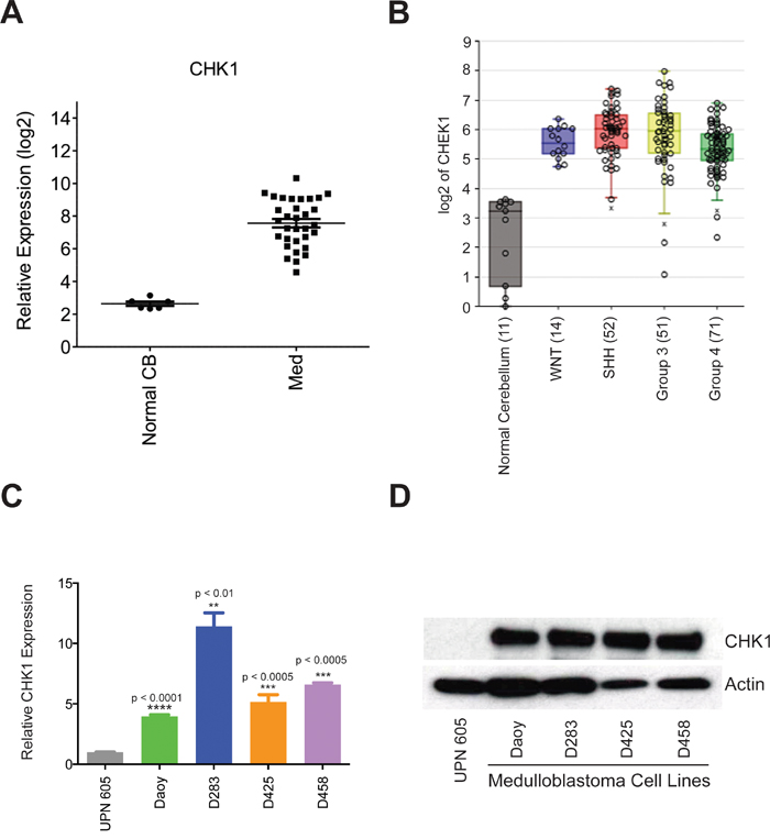 CHK1 is overexpressed in medulloblatoma.