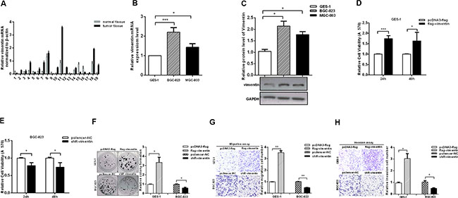 Vimentin promotes the aggressiveness of gastric cancer cells.