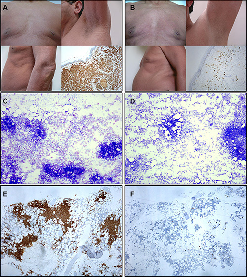 Illustrating skin and bone marrow microscopic images obtained before and at month +12 of imatinib therapy in a patient with advanced WDSM who achieved CR (case #1).