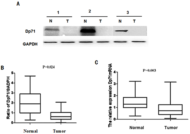 Dp71 expression decreased significantly in gastric cancer.