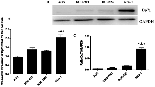 Decreased Dp71 mRNA and protein expression in gastric cancer cell lines.