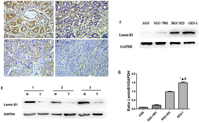 Decreased lamin B1 expressions in gastric cancer tissue and cancer cells.