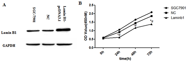 Increased lamin B1 expression inhibited the proliferation of SGC7901 cells.