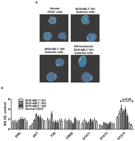 IK6 activates STAT5 and HO-1 in BCR-ABL1+-IK6 leukemic cells.