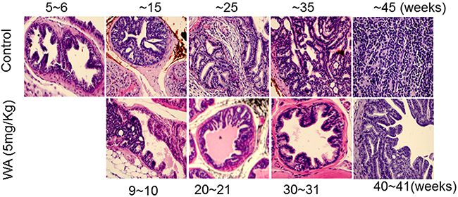 Control and WA-treated mice were periodically sacrificed, and prostate tumor tissues were subjected to H&E analysis.