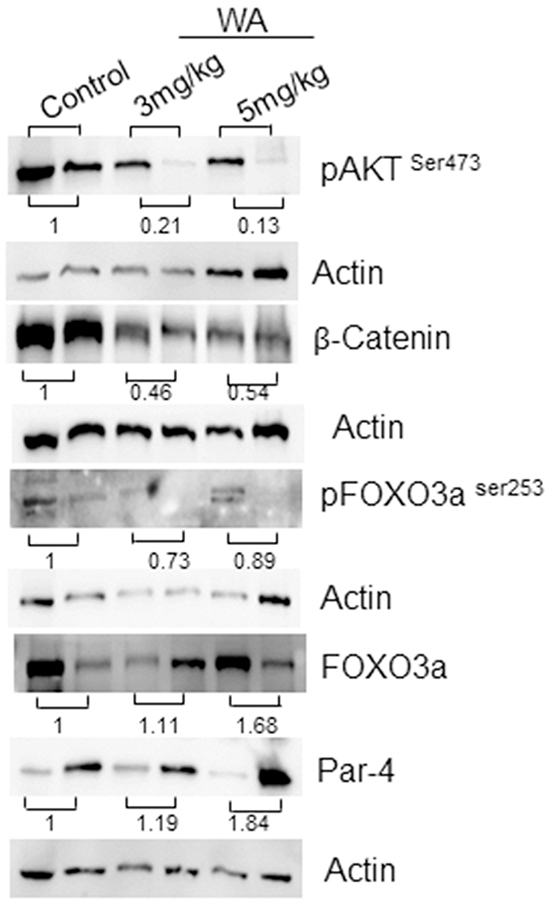 Western blot analysis in control and WA-treated prostate tumor tissues.