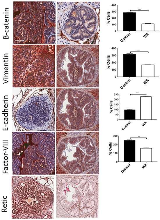Immunohistochemical staining for EMT markers.
