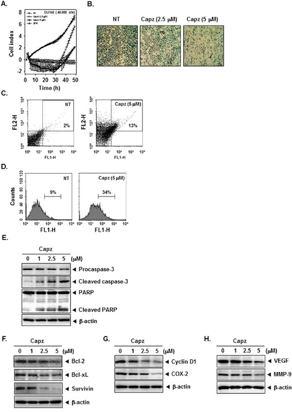 Capz inhibits invasion and promotes apoptosis in prostate cancer cells.