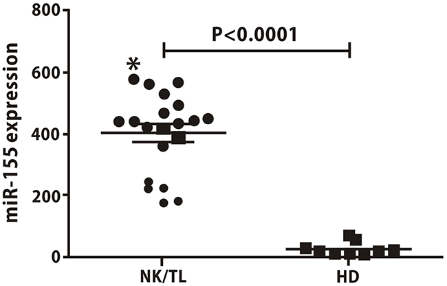 Serum levels of miR-155 are higher in NKTCL patients than in healthy donors.