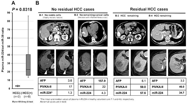 Post-treatment plasma miR-224 level as a sensitive indicator of residual tumor during HCC treatment.
