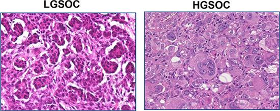Histological features of LGSOCs and HGSOCs.