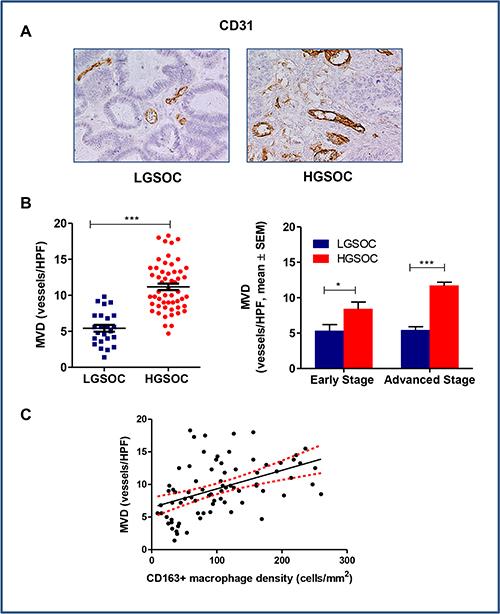 Tumor-associated angiogenesis in LGSOC and HGSOC tissue specimens.