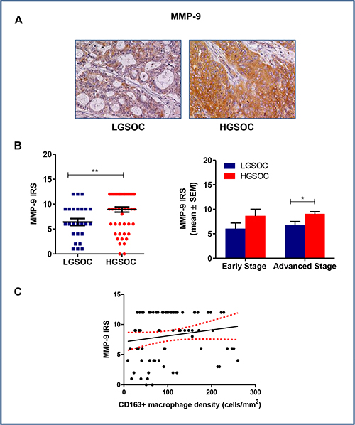 Matrix metalloproteinases 9 (MMP-9) expression in LGSOC and HGSOC tissue specimens.