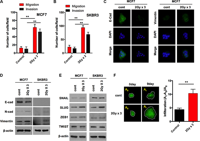 Fractionated radiation promotes invasiveness of breast cancer cells through EMT.