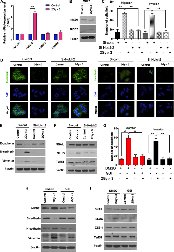 Fractionated radiation-induced Notch signaling promotes EMT in breast cancer cells.